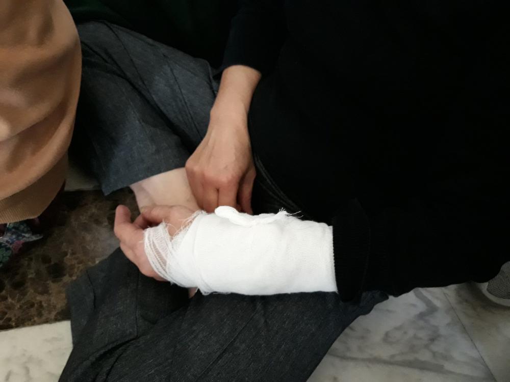 Nhân viên văn phòng tại Charmvit bị thương